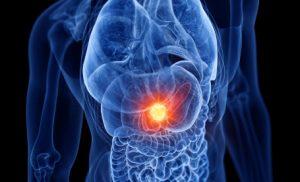 rak trzustki