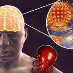 kleszczowe zapalenie mozgu kzm